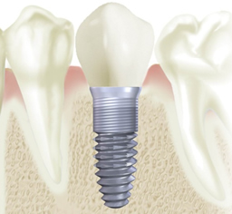Candidates for Dental Implants