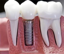 https://www.healthfirstdental.com/wp-content/uploads/2019/10/implants.jpg