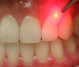 https://www.healthfirstdental.com/wp-content/uploads/2019/10/laser-therapy.jpg