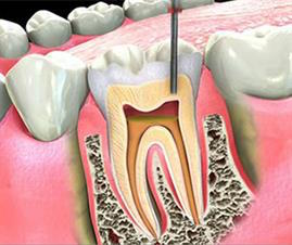 https://www.healthfirstdental.com/wp-content/uploads/2019/10/root-canal-therapy.jpg